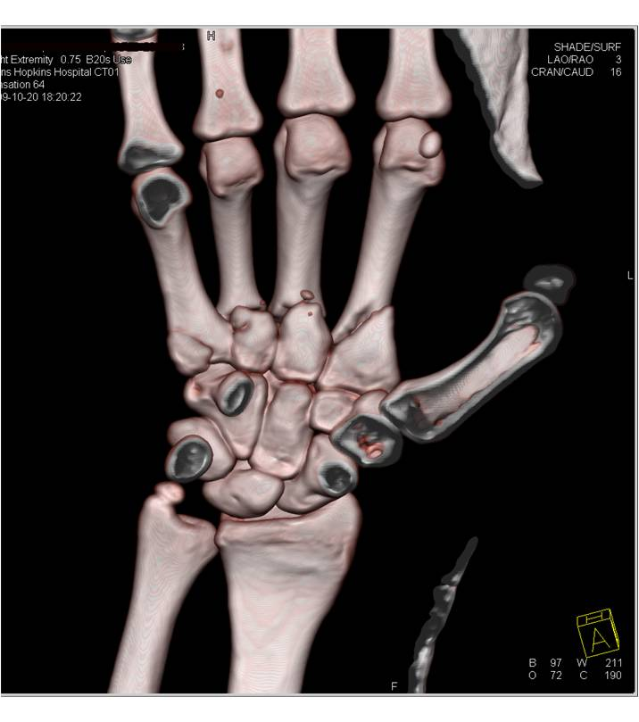 Image result for 3 d ct of a hand fracture