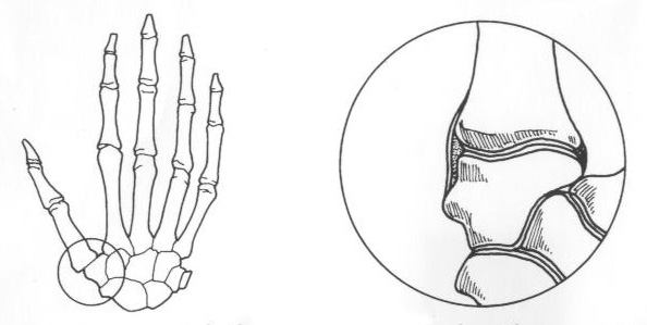 Image result for diagram of basilar thumb arthritis