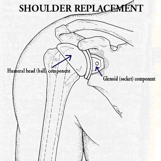 Image result for drawing for total shoulder replacement components