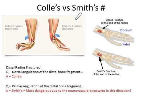 Image result for image of Colles fracture