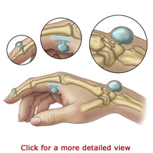 Image result for image of ganglion cyst