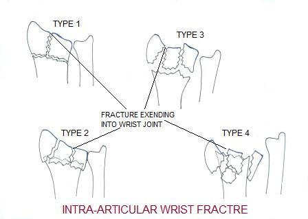 Image result for image of intra articular wrist fracture