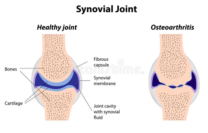 Image result for image of normal synovial joint