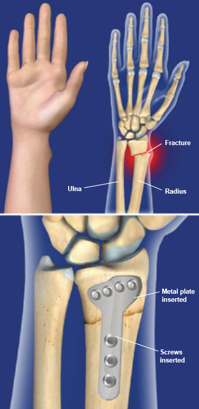 Image result for image of plates and screws for distal radius fracture