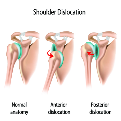 Image result for image of shoulder dislocation