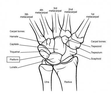 Image result for image of wrist bones