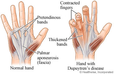 Image result for picture of dupuytren's contracture