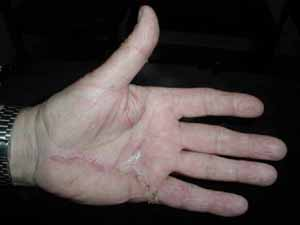 Image result for picture of healed dupuytren excision