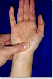 Image result for picture of median nerve compression test