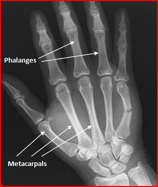 Image result for x ray of metacarpal fracture