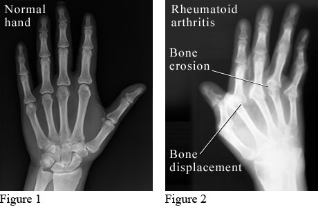 Image result for xray of arthritis of hand