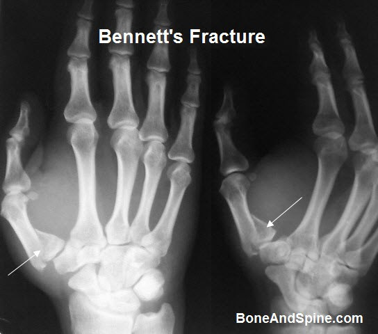 Image result for xray of articular fracture of hand