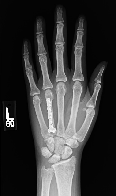 Image result for xray of hand fracture treated with pins