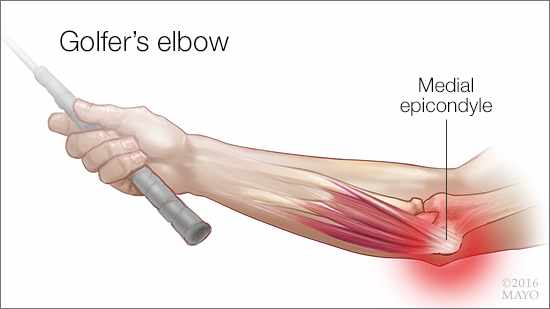 Image result for picture of golfers elbow
