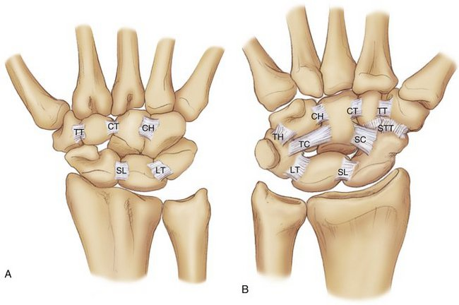 Image result for picture of intrinsic ligaments of wrist