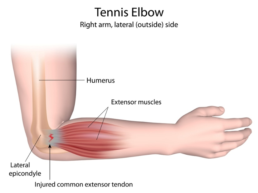 Image result for picture of tennis elbow
