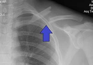 Image result for xray of clavicle fracture