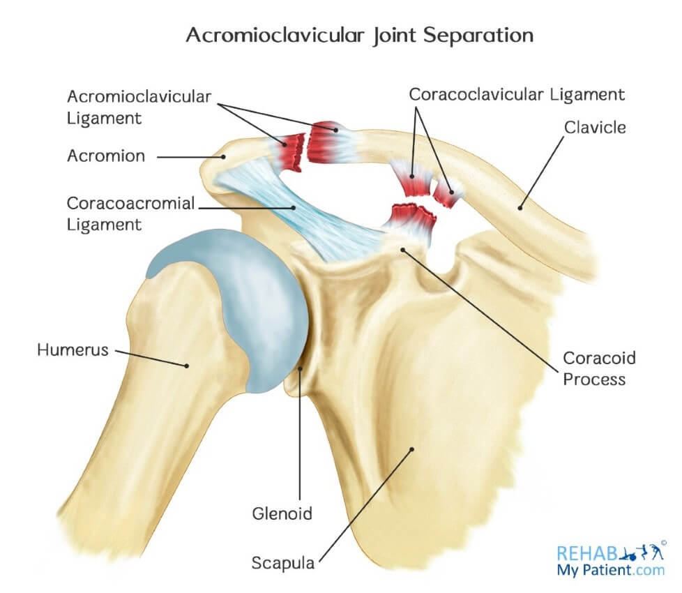 Image result for diagram for ac joint separation