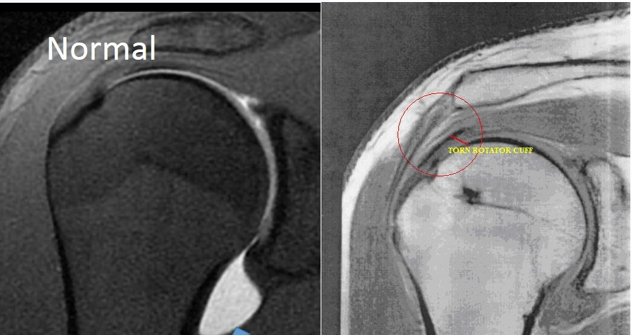 Image result for mri of shoulder with rotator cuff tendonitis